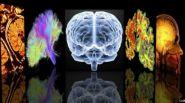 تحديد نقطة الضعف في الدماغ المسببة للخرف