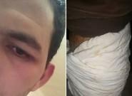 """إعتداء على شاب إبن مدينة تنغير بعد مشاركتهفي وقفة تضامنية سلمية مع معتقلي """"حراك الريف"""" بمراكش"""
