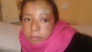 قلعة مكونة…لمسة جراحية من طبيب بلجيكي تعيد النظر للعين اليسرى لطفلة من أزيغمت